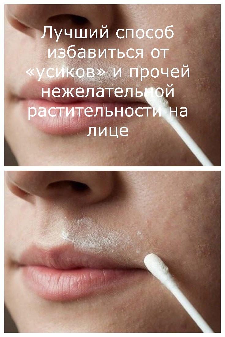Лучший способ избавиться от «усиков» и прочей нежелательной растительности на лице